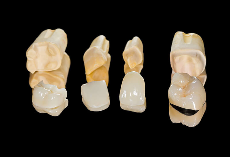 Protezy stomatologiczne, korony