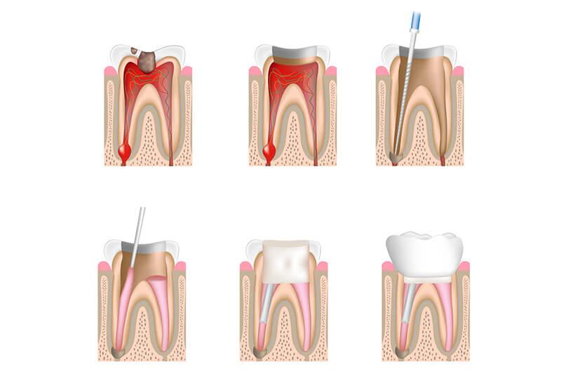 Przekrój zęba - leczenie kanałowe