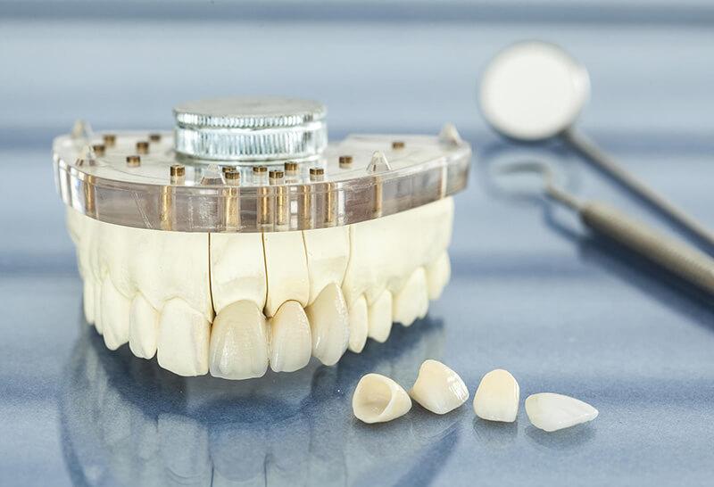 Proteza stomatologiczna